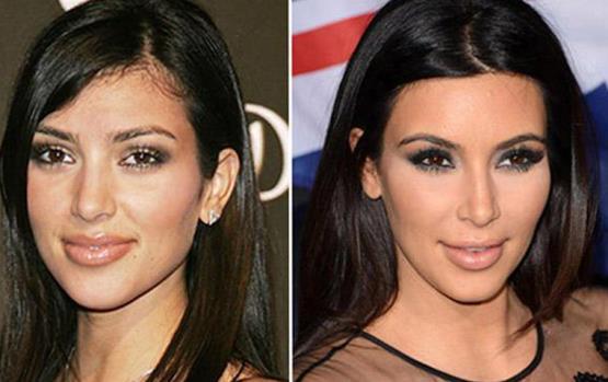 صور صادمة لأشهر النجمات قبل وبعد عمليات التجميل
